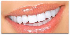naturally-whiten-teeth1.jpg